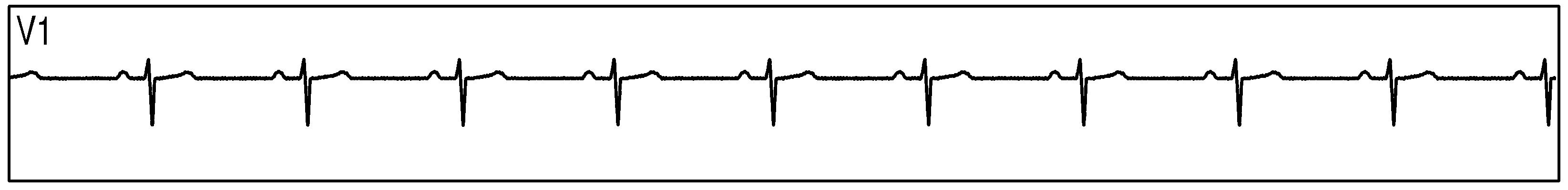 analog front end of ecg Design and implementation of an ecg front end circuit 45 ecg analog front end noise floor 67 xiii 46 crosstalk between channels.